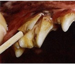 slab fracture